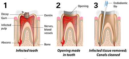 root canal treatment maroubra
